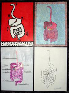 The Museum of Bad Art is auctioning ''Studies in Digestion'' by Deborah Grumet to raise funds for the Rose Art Museum at Brandeis University. (Museum of Bad Art)