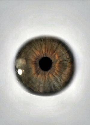 Figure 2 - Eyeball